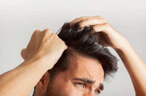 השתלת שיער המדריך המקיף